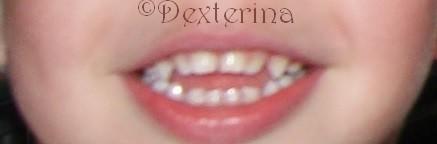 souriredex